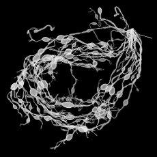 Bladderwrack seaweed (Fucus vesiculosus), X-ray