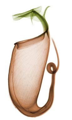 Pitcher plant (Nepenthes sp.), coloured X-ray