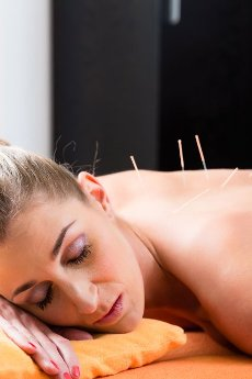 Woman at acupuncture session with needles in back having alternative therapy