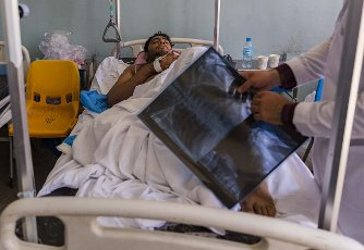 (210616) -- HERAT, June 16, 2021 (Xinhua) -- An injured man receives medical treatment at a hospital in Herat, Afghanistan, June 16, 2021. Two women and a child were killed and 11 people wounded in a shooting in western Afghan province of Herat Tuesday night, an Interior Ministry official confirmed on Wednesday. (Photo by Elaha Sahel\/Xinhua